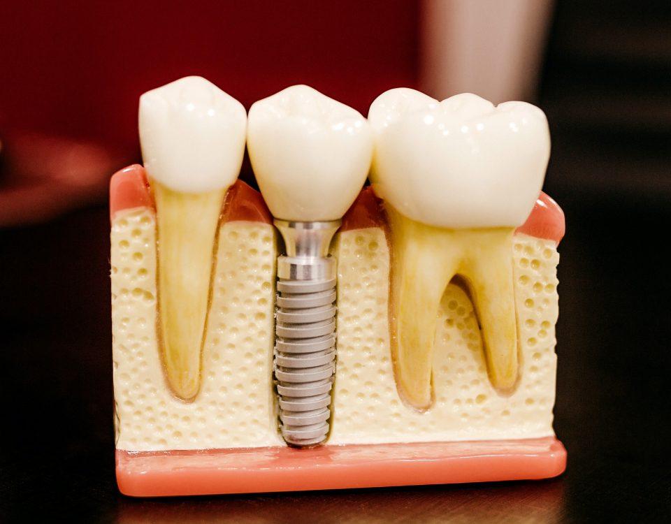 implantaten, implantaat behandeling, tandimplantaat